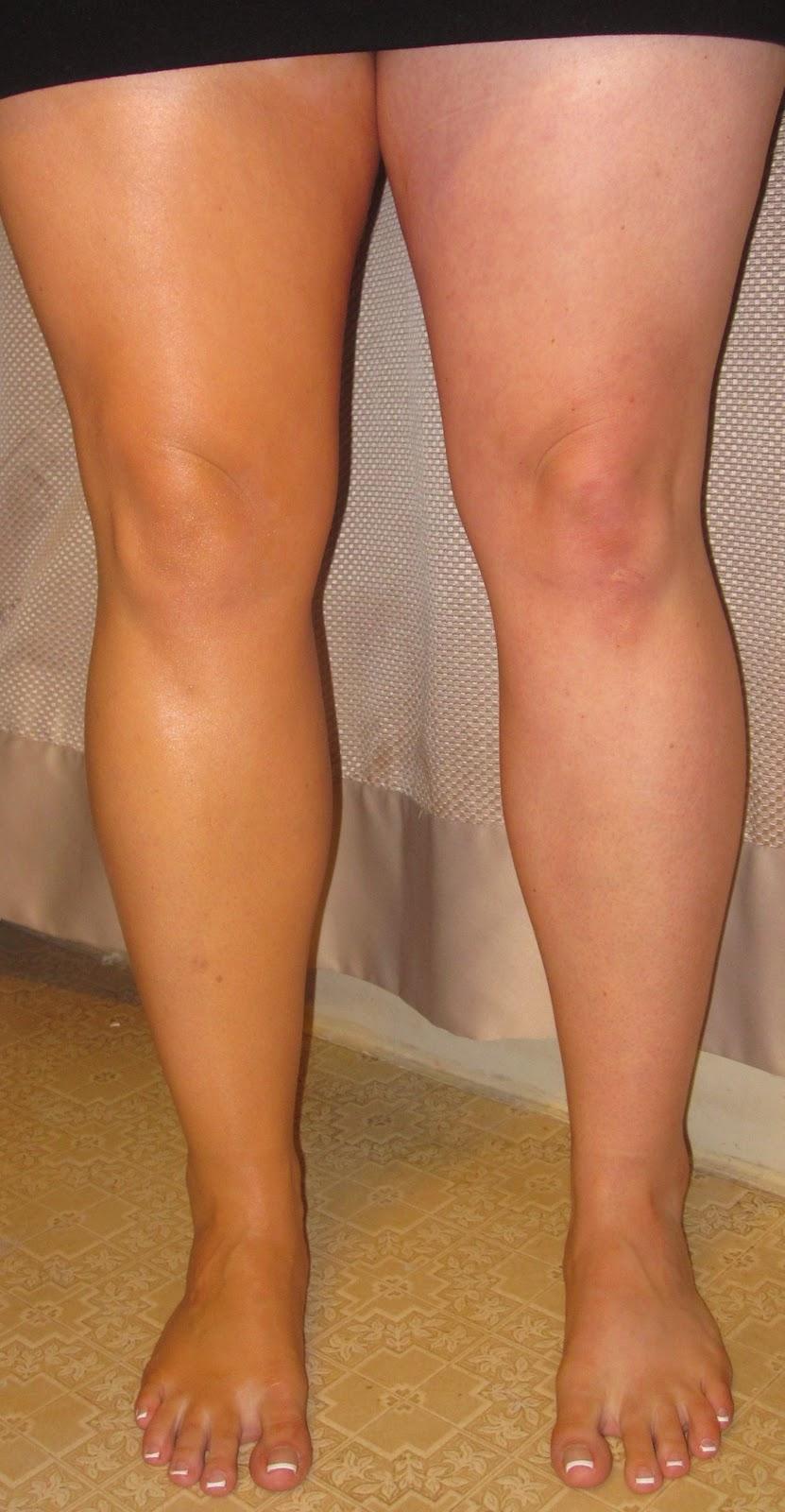 Dark Knees Makeup – Saubhaya Makeup