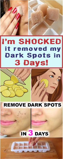 I'm SHOCKED it removed my Dark Spots in 3 Days, Potato & lemon juice icecubes