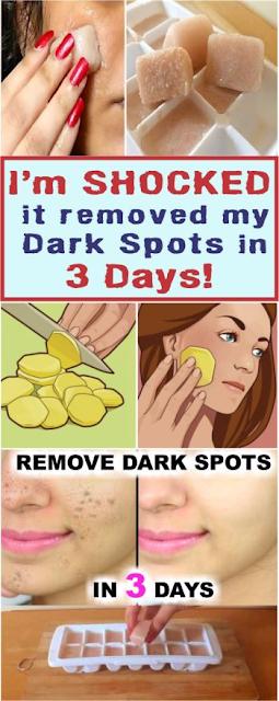 I'm SHOCKED it removed my Dark Spots in 3 Days, Potato & lemon juice icecubes