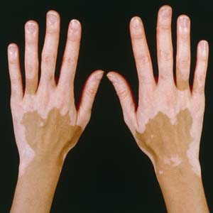 Manfaat Lada Hitam Bagi Penderita Penyakit Vitiligo