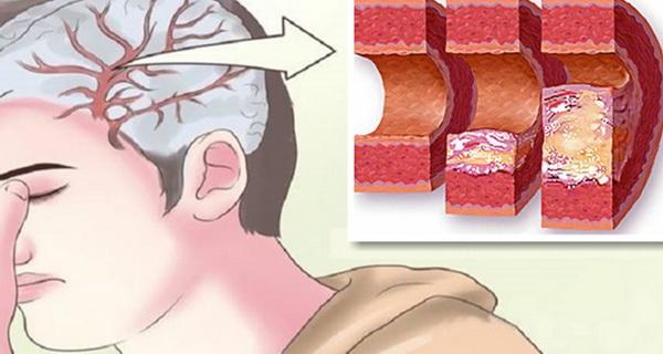enzima care curata arterele