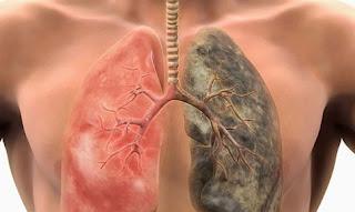 οι 6 τροφές καθαρίζουν τους πνεύμονες από τη νικοτίνη