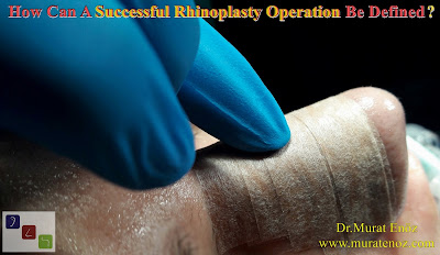 What should be expected from a successful nasal aesthetic surgery? - Successful rhinoplasty operation - Successful nose job surgery - Rhinoplasty in istanbul - Rhinoplasty in Turkey - Nose job in Turkey - Nose job in İstanbul - Definition of successful nose job surgery - Definition of successful rhinoplasty operation