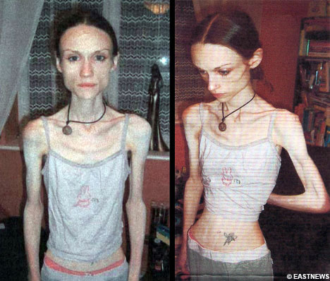 Anorexia.