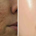 Make Your Face Healthy and Flawless: Shrink & Minimize Large Pores Using These Home Remedies
