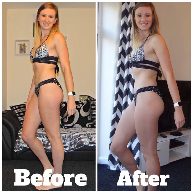 So Shape Before and After photos