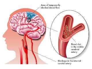 obat stroke, pengertian stroke, stroke obat alami
