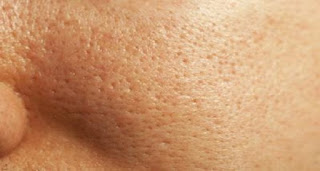 penyebab pori  pori wajah membesar