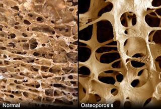 Obat Herbal Tulang Keropos
