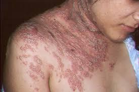 Obat Herbal Pipeca Terbukti Ampuh Atasi Penyakit Herpes