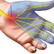 Obat Alami Carpal Tunnel Syndrome ( CTS )