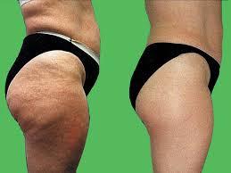 Phải làm sao để giảm mỡ mông nhanh chóng và an toàn nhất