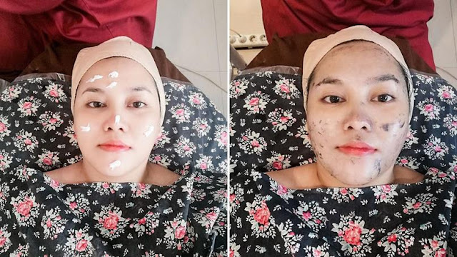 treatment-detox-wajah-ella-skincare