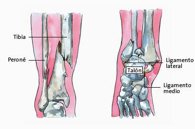 Como recuperarse de una fractura de tibia y perone