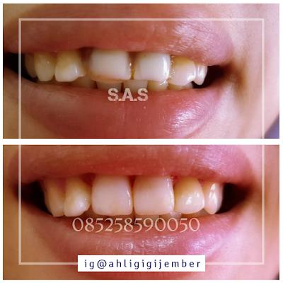 Foto hasil perbakan penambalan gigi depan keropos hitam
