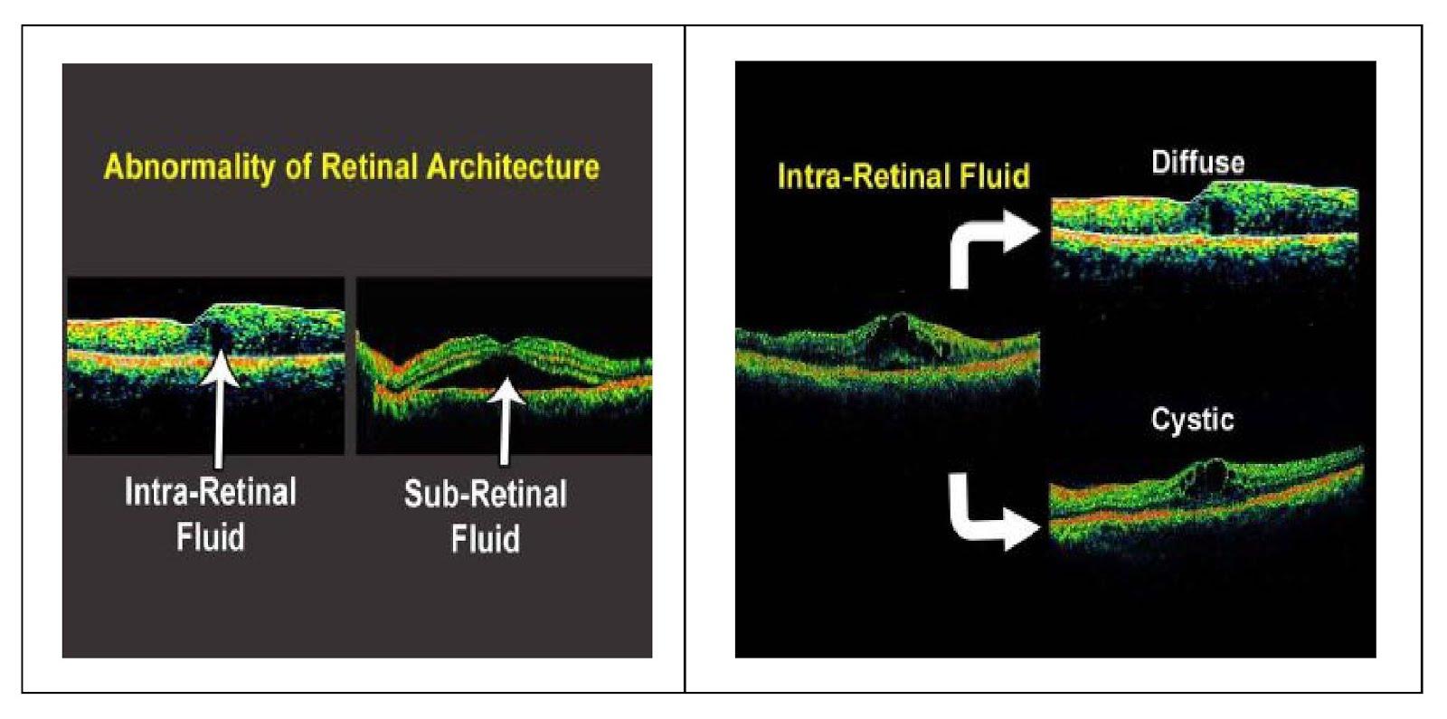 Retinal architecture