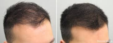 Image result for hairloss blocker
