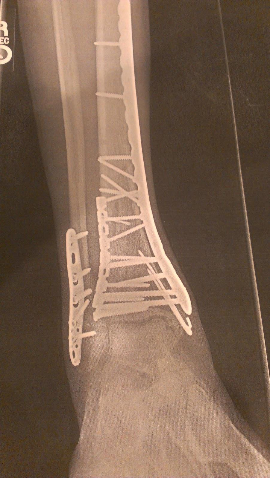 Talus Bone Fracture - Fracture Treatment