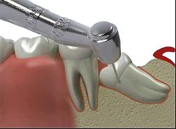 Récupération des dents de sagesse
