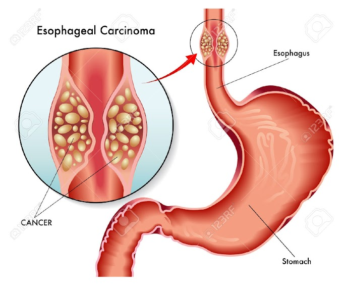 Esophageal Cancer Symptoms to Know