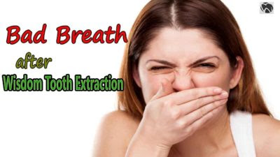 How To Get Rid Of Bad Breath After Wisdom Tooth Extraction