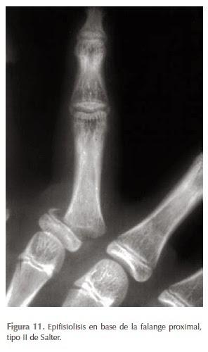 Lesiones traumáticas de la mano - VI | Todo sobre Fisioterapia