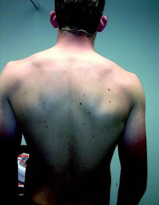 Standing Posture - El Paso Chiropractor