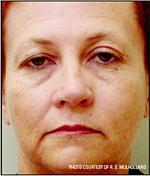 wrinkles_02_b IPL Fotofacial (Photofacial)Facial Aesthetics
