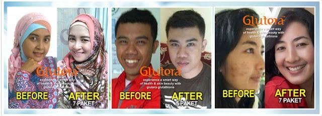 Agen Glutera,6 varian produk GLUTERA
