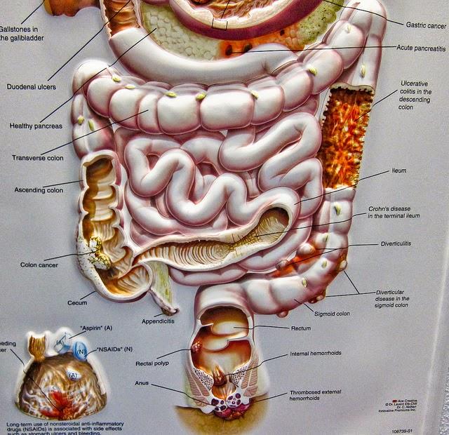 onderste deel dikke darm