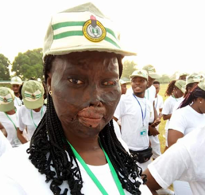 "Photos: ""My own WCW"" - Brave burn survivor who was attacked with acid by uncle's wife begins her national youth service program"