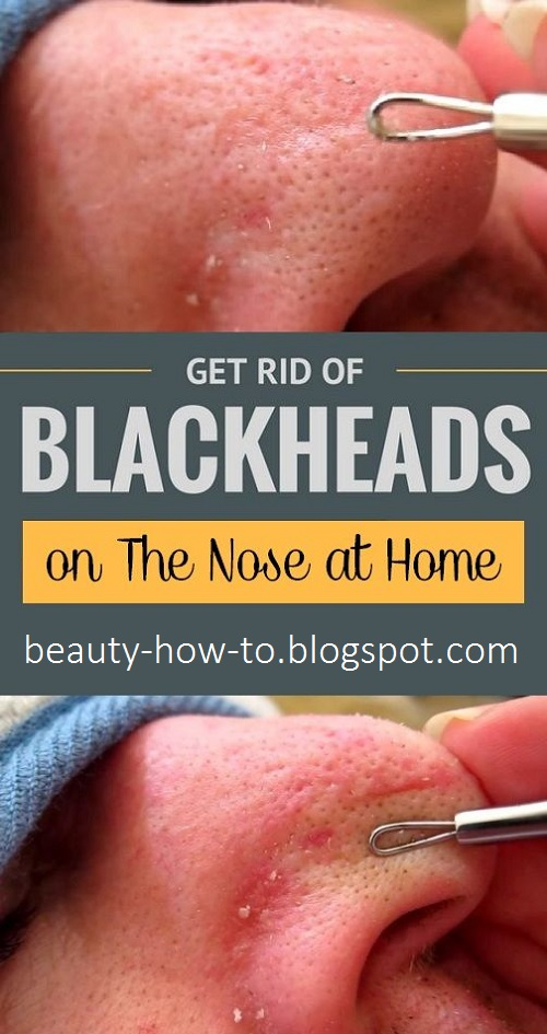 How to get rid of blackheads on the nose - How To Beauty