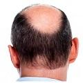 cream nutrisi penumbuh rambut rontok botak