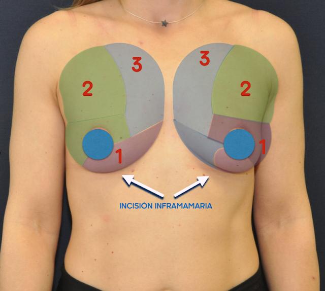 aumento de pecho: descripción de la técnica