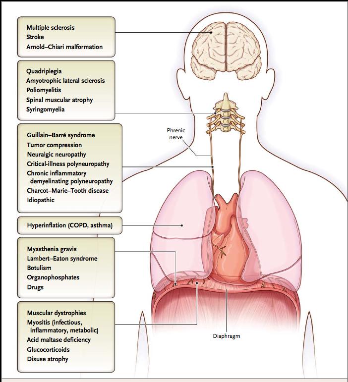 Hospitalist ~なんでも無い科医の勉強ノート~: 横隔膜の障害