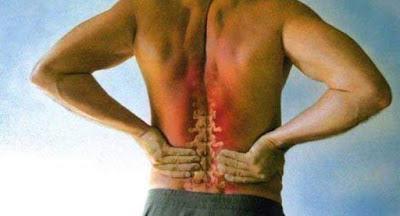 Cara Mengobati Sakit Tulang Belakang Menggunakan Obat Herbal