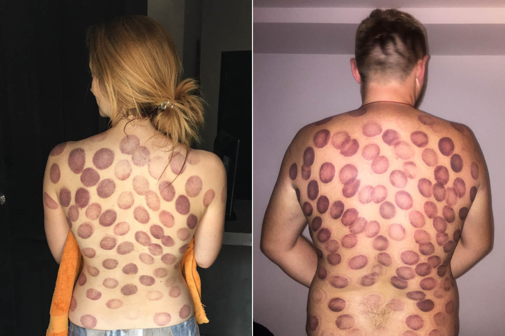 chinese medicine cupping therapy hitting eject