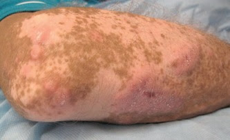 Fig. 5.45 Common variable immunodeficiency with granulomas in vitiligo.
