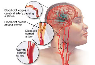 Obat Stroke Alternatif, cara pengobatan orang stroke, olahraga penyakit stroke, tips pengobatan stroke ringan, obat penyembuhan stroke ringan, bisakah penyakit stroke sembuh, operasi penyakit stroke