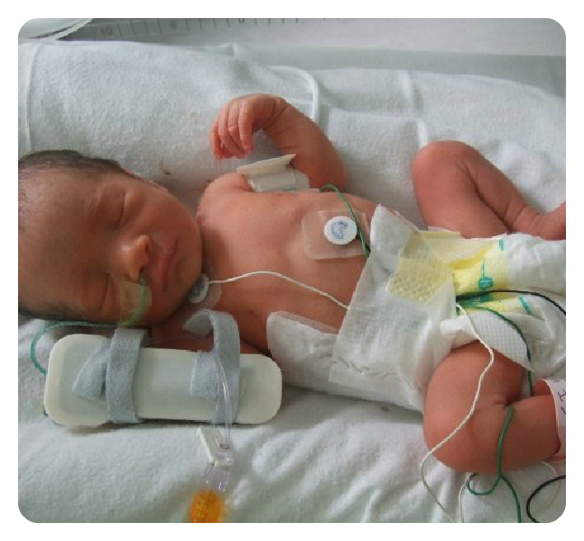 36 Weeks Premature Birth – Jerusalem House
