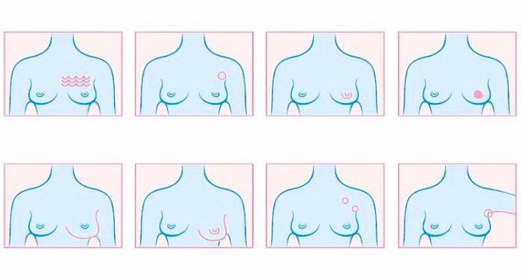 خطير جدا : 4 علامات لا يتحدث عنها أحد تدل على  الإصابة بسرطان الثدي