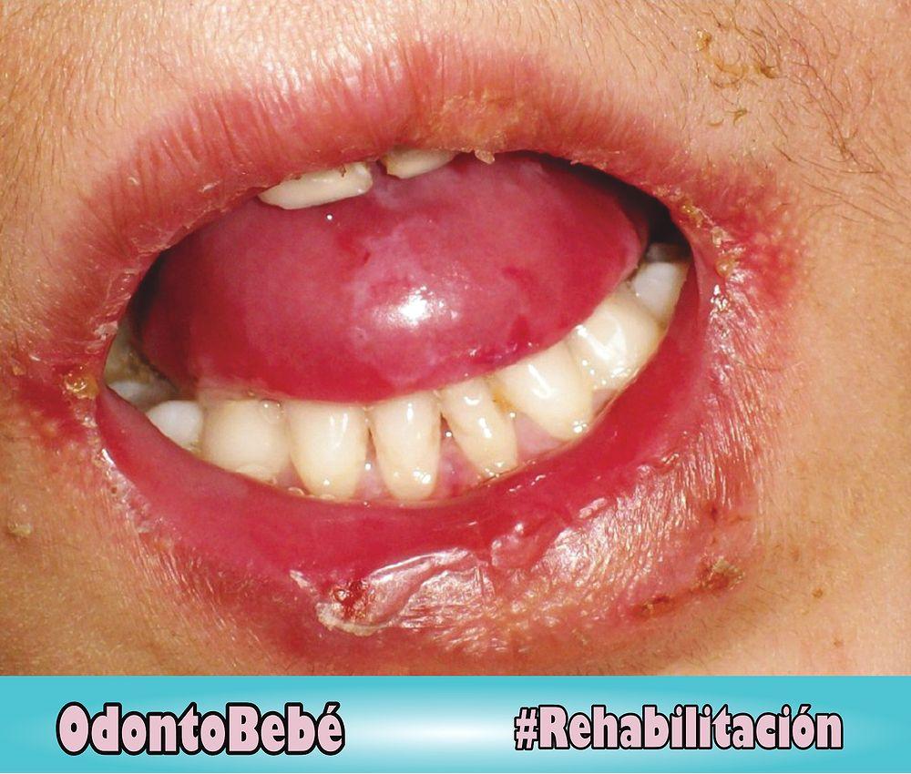 rehabilitacion-epidermolisis-bullosa