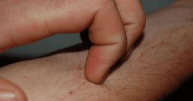 1 - Increible..!!! Conocer los síntomas de un Higado enfermo podría salvarle la vida