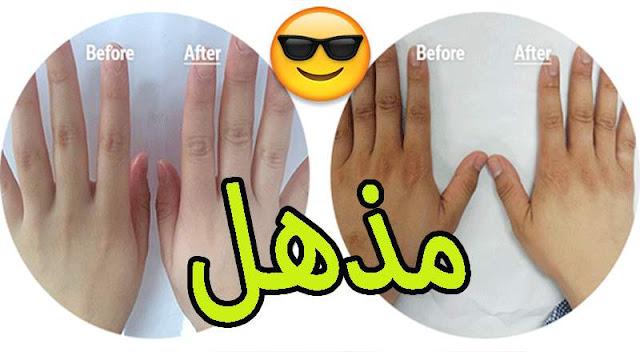 | تبييض اليدين | في 15 دقيقة فقط وبمكونات طبيعية بسيطة