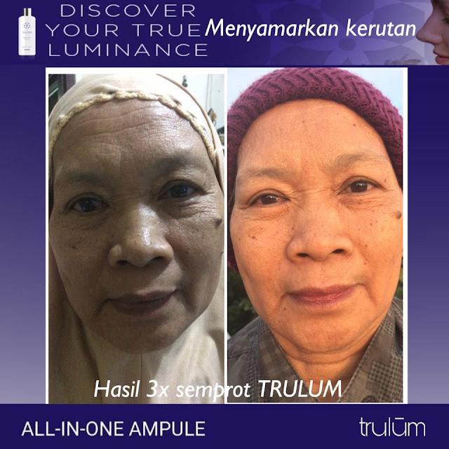 Jual Serum Penghilang Jerawat Trulum Skincare Lore Barat Poso