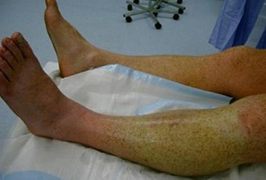 Signs And Symptoms Of Compartment Syndrome