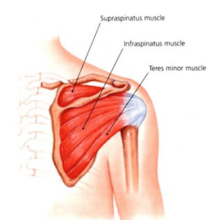 Subscapularis tear Test, Surgery, Recovery, Exercise