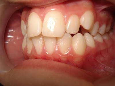 Phải dùng thêm mini vit hỗ trợ niềng răng khi nào?