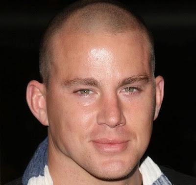 balding men's hairstyles pictures