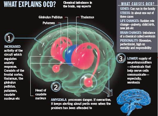 Rishabh Tiwari's Blog: Osessive Compulsive Disorder (OCD)